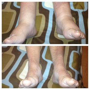 Before and after MLD for foot swelling